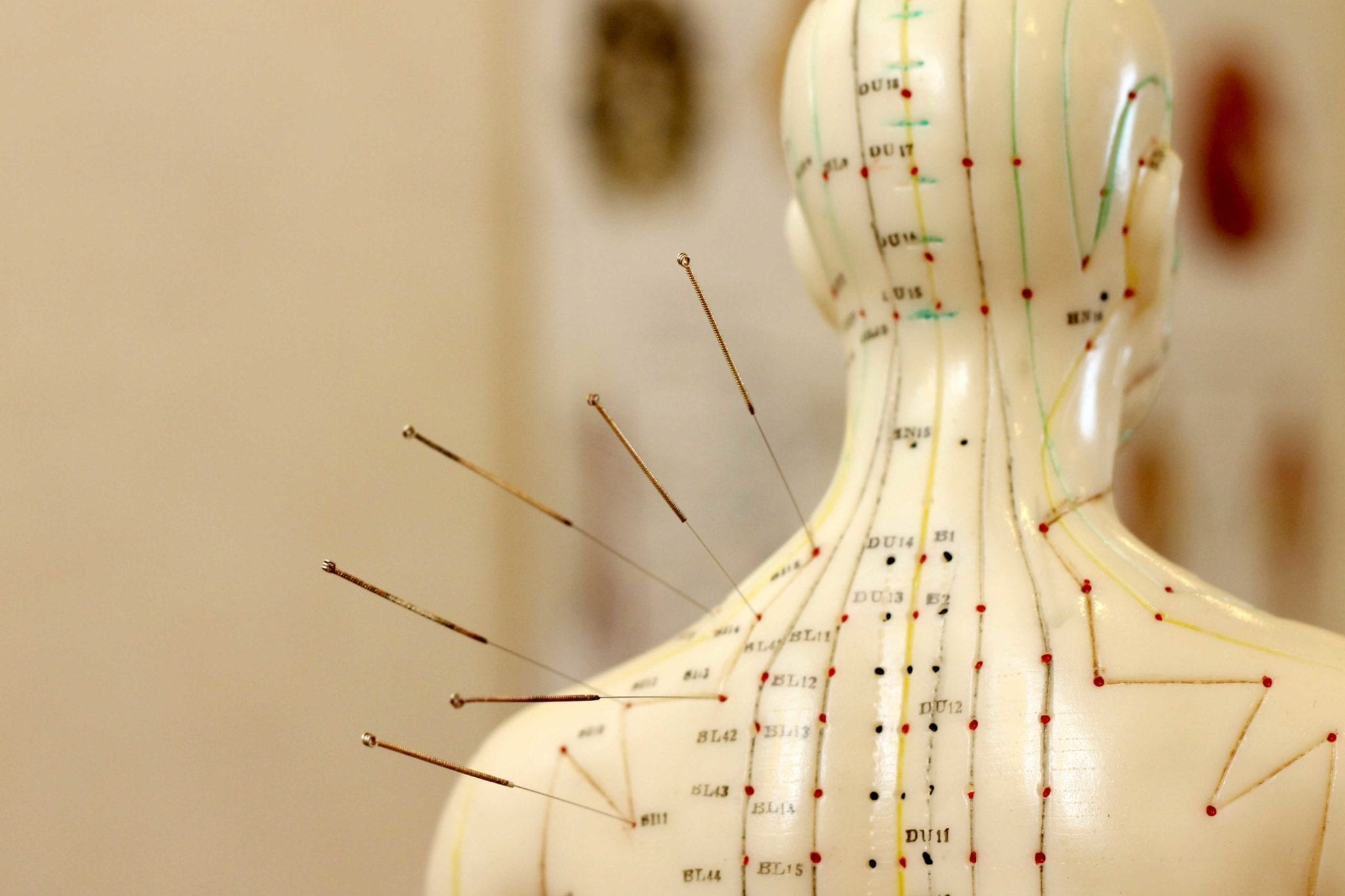 Charlotte Acupuncture Treatment